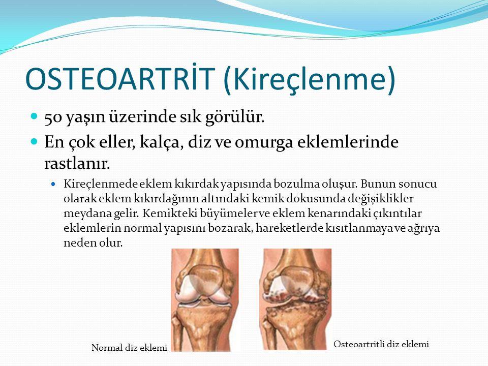 OSTEOARTRİT (Kireçlenme) 50 yaşın üzerinde sık görülür. En çok eller, kalça, diz ve omurga eklemlerinde rastlanır. Kireçlenmede eklem kıkırdak yapısın