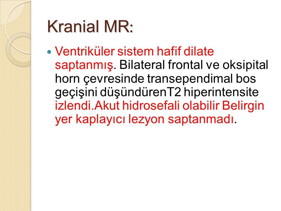 Kranial MR : Ventriküler sistem hafif dilate saptanmış.