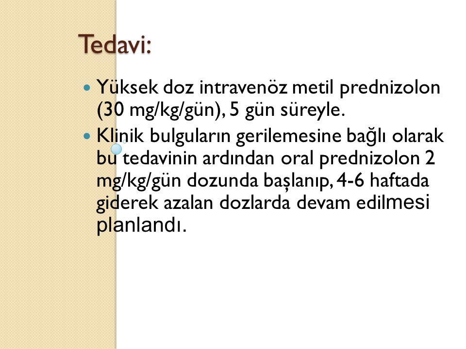 Tedavi: Yüksek doz intravenöz metil prednizolon (30 mg/kg/gün), 5 gün süreyle.