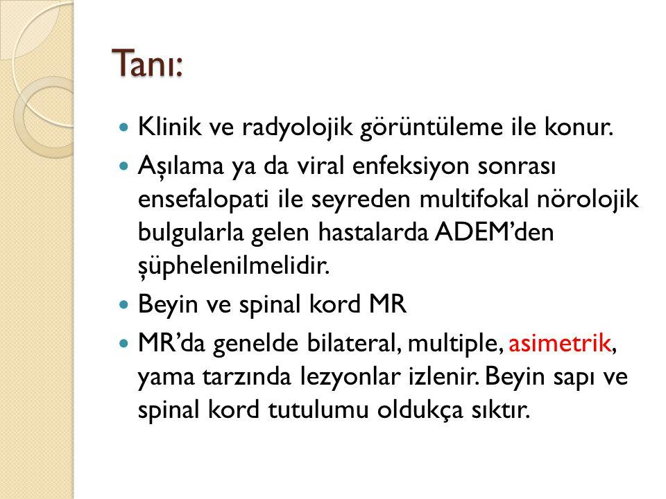 Tanı: Klinik ve radyolojik görüntüleme ile konur.