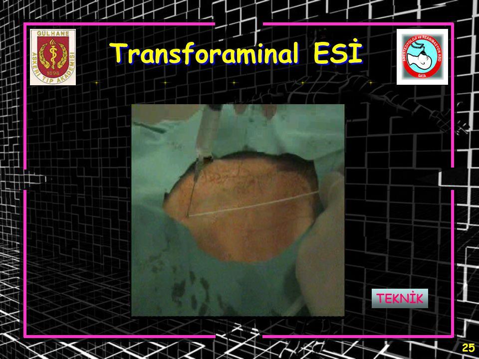 25 Transforaminal ESİ TEKNİK