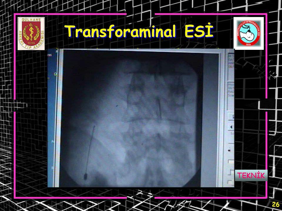 26 Transforaminal ESİ TEKNİK