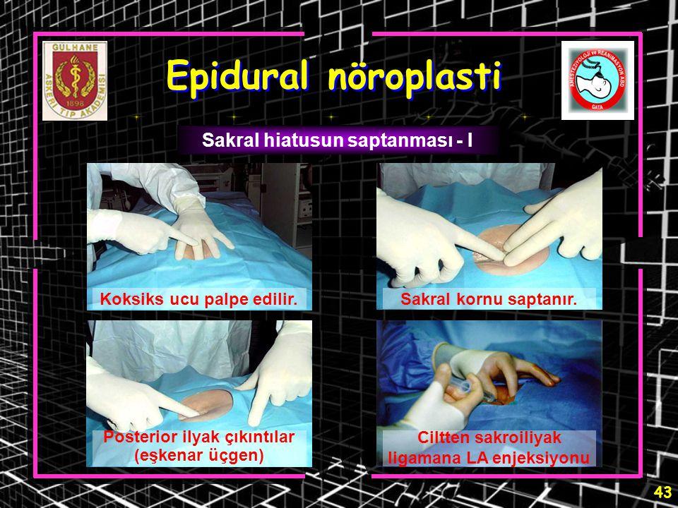 43 Epidural nöroplasti Sakral hiatusun saptanması - I Koksiks ucu palpe edilir.Sakral kornu saptanır. Ciltten sakroiliyak ligamana LA enjeksiyonu Post
