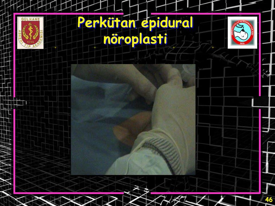 46 Perkütan epidural nöroplasti