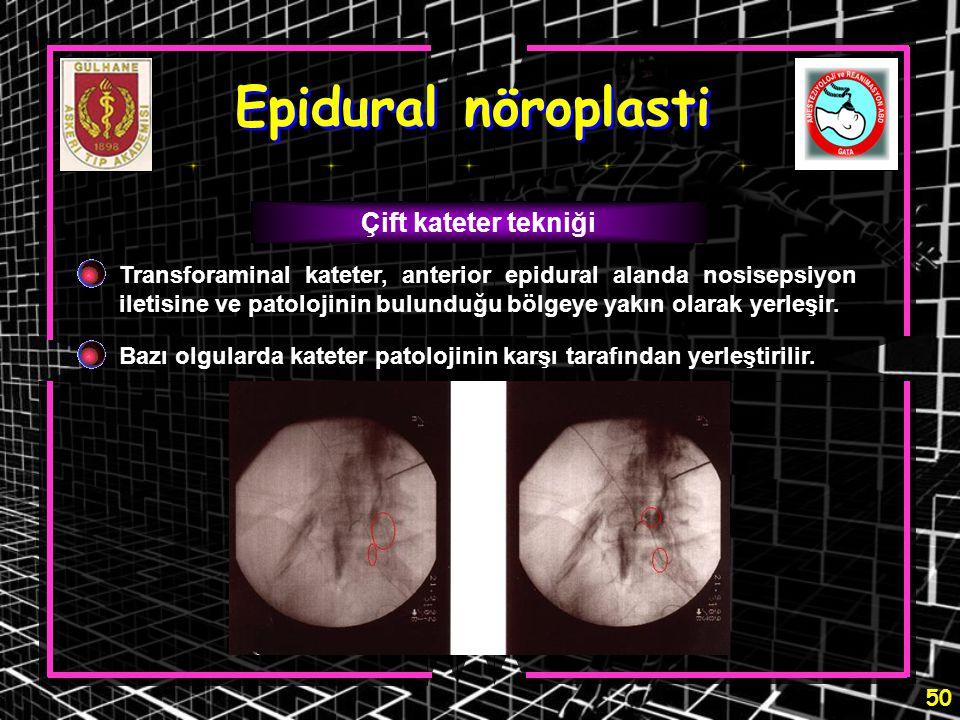 50 Epidural nöroplasti Çift kateter tekniği Transforaminal kateter, anterior epidural alanda nosisepsiyon iletisine ve patolojinin bulunduğu bölgeye y