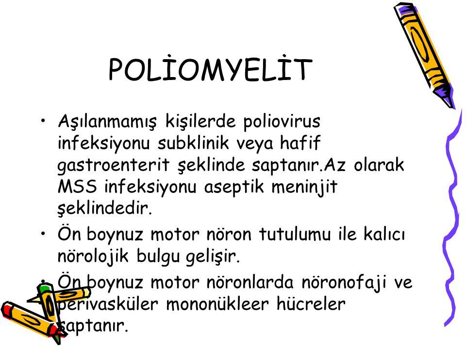 POLİOMYELİT Aşılanmamış kişilerde poliovirus infeksiyonu subklinik veya hafif gastroenterit şeklinde saptanır.Az olarak MSS infeksiyonu aseptik meninj
