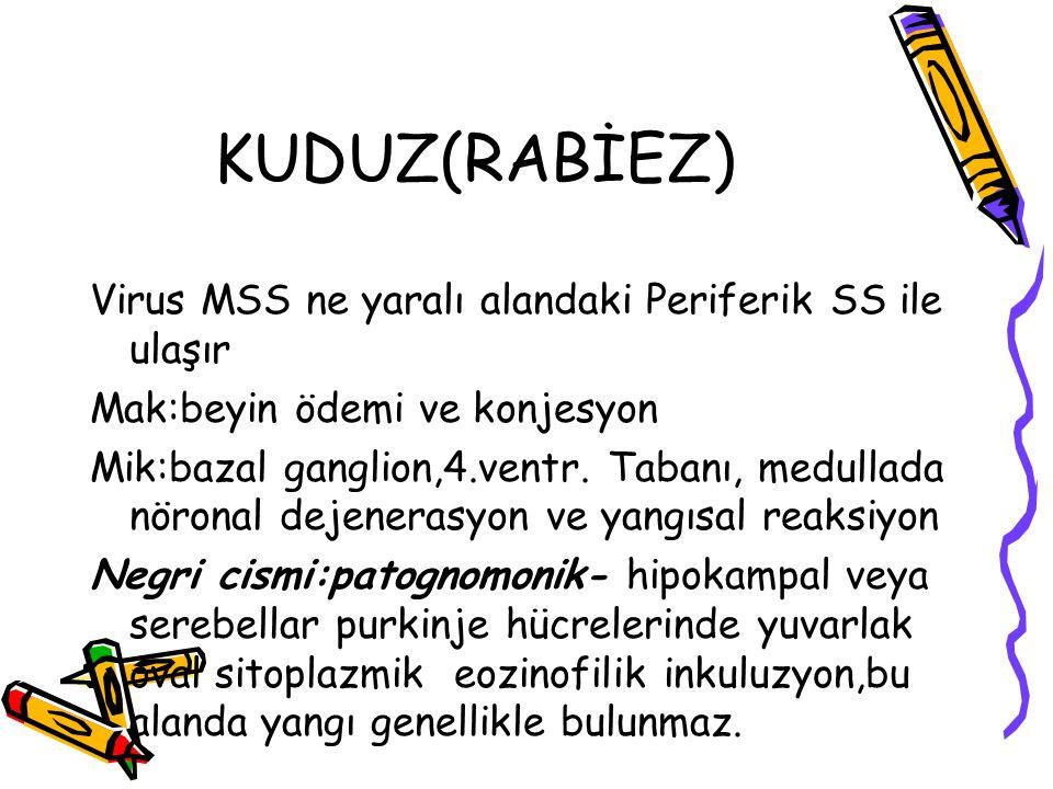 KUDUZ(RABİEZ) Virus MSS ne yaralı alandaki Periferik SS ile ulaşır Mak:beyin ödemi ve konjesyon Mik:bazal ganglion,4.ventr. Tabanı, medullada nöronal
