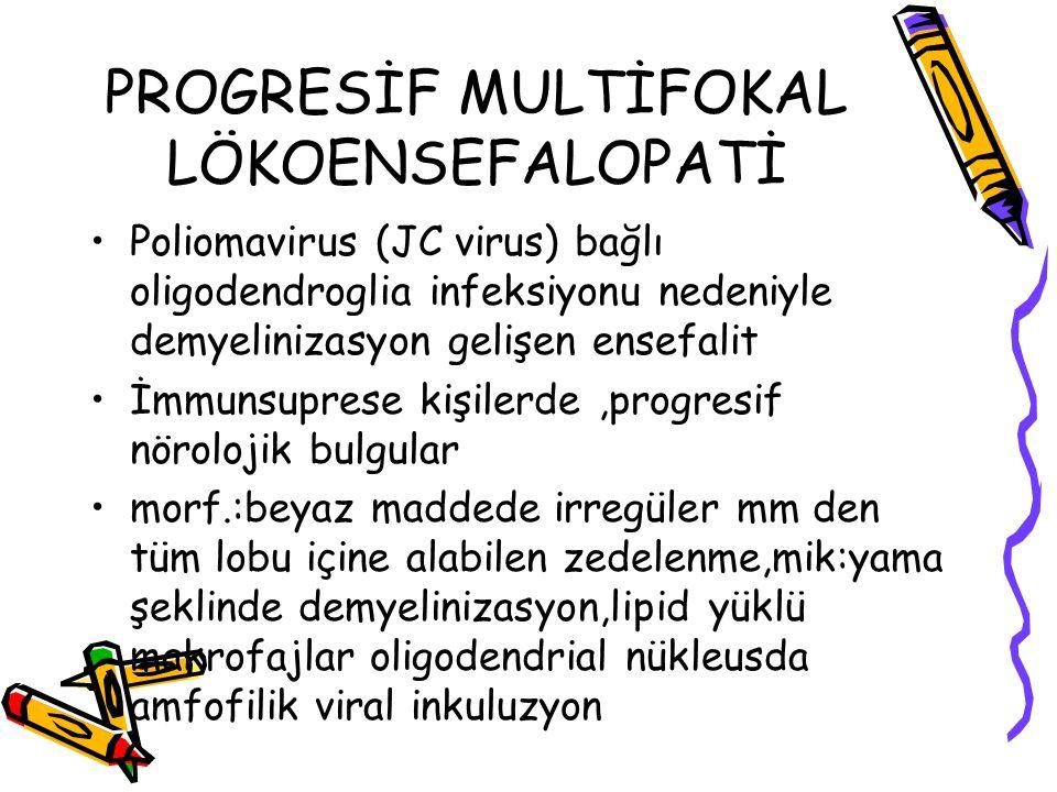 PROGRESİF MULTİFOKAL LÖKOENSEFALOPATİ Poliomavirus (JC virus) bağlı oligodendroglia infeksiyonu nedeniyle demyelinizasyon gelişen ensefalit İmmunsupre