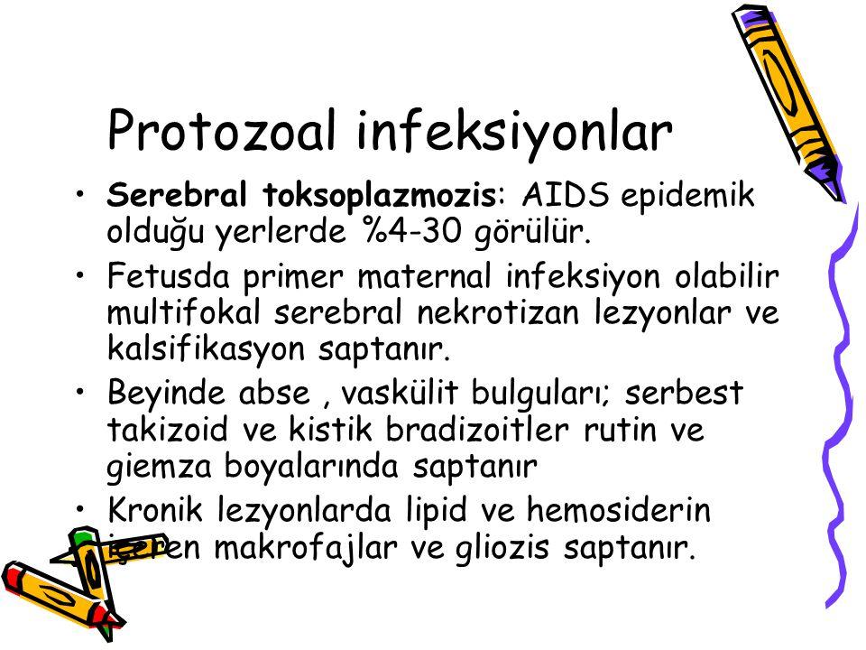Protozoal infeksiyonlar Serebral toksoplazmozis: AIDS epidemik olduğu yerlerde %4-30 görülür. Fetusda primer maternal infeksiyon olabilir multifokal s