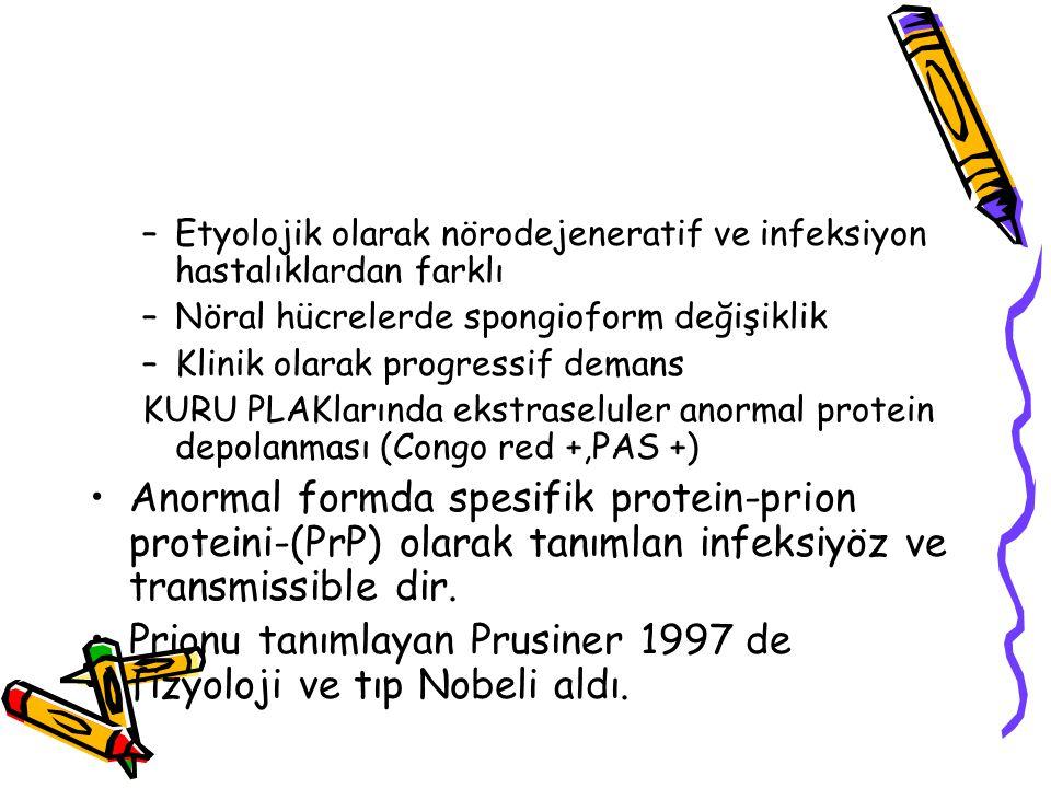 –Etyolojik olarak nörodejeneratif ve infeksiyon hastalıklardan farklı –Nöral hücrelerde spongioform değişiklik –Klinik olarak progressif demans KURU P