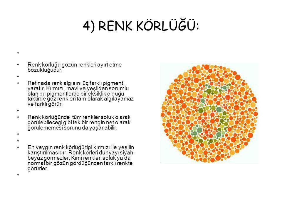 4) RENK KÖRLÜĞÜ: Renk körlüğü gözün renkleri ayırt etme bozukluğudur. Retinada renk algısını üç farklı pigment yaratır. Kırmızı, mavi ve yeşilden soru