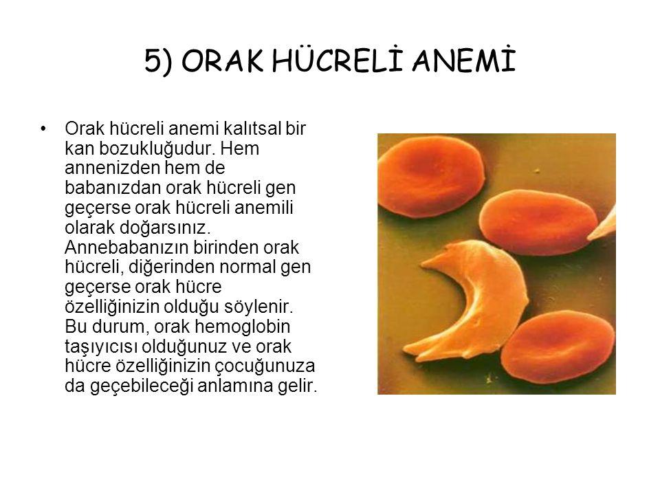 5) ORAK HÜCRELİ ANEMİ Orak hücreli anemi kalıtsal bir kan bozukluğudur. Hem annenizden hem de babanızdan orak hücreli gen geçerse orak hücreli anemili