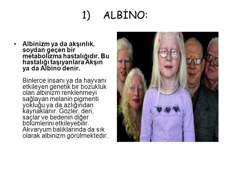 1)ALBİNO: Albinizm ya da akşınlık, soydan geçen bir metabolizma hastalığıdır. Bu hastalığı taşıyanlara Akşın ya da Albino denir. Binlerce insanı ya da