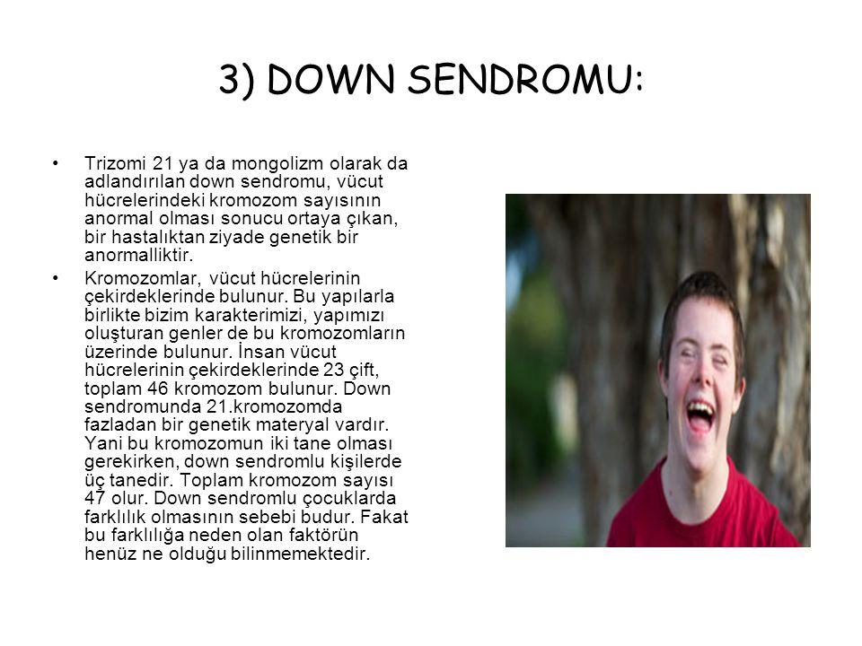 3) DOWN SENDROMU: Trizomi 21 ya da mongolizm olarak da adlandırılan down sendromu, vücut hücrelerindeki kromozom sayısının anormal olması sonucu ortay