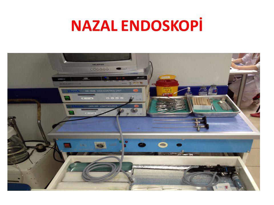 NAZAL ENDOSKOPİ