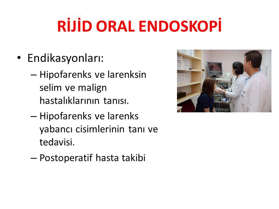 RİJİD ORAL ENDOSKOPİ Endikasyonları: – Hipofarenks ve larenksin selim ve malign hastalıklarının tanısı. – Hipofarenks ve larenks yabancı cisimlerinin