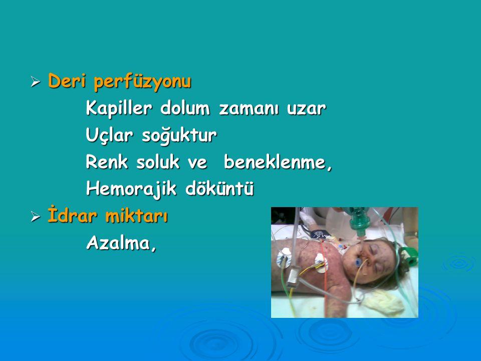 Şokta klinik değerlendirme Bilinç durumu Ana-babasını tanıma Ağrılı uyarıya yanıt Kas tonusunda azalma (genel hipotoni) Yaşamsal belirtiler Solunum sa