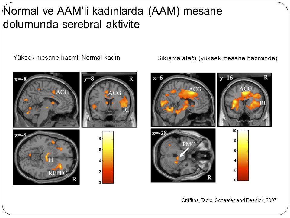 Normal ve AAM'li kadınlarda (AAM) mesane dolumunda serebral aktivite Griffiths, Tadic, Schaefer, and Resnick, 2007 Yüksek mesane hacmi: Normal kadın S