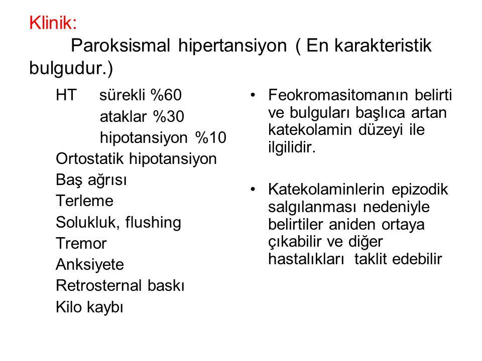 Klinik: Paroksismal hipertansiyon ( En karakteristik bulgudur.) HT sürekli %60 ataklar %30 hipotansiyon %10 Ortostatik hipotansiyon Baş ağrısı Terleme