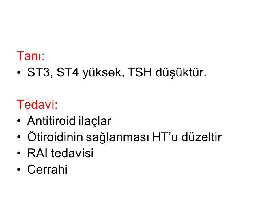 Tanı: ST3, ST4 yüksek, TSH düşüktür. Tedavi: Antitiroid ilaçlar Ötiroidinin sağlanması HT'u düzeltir RAI tedavisi Cerrahi