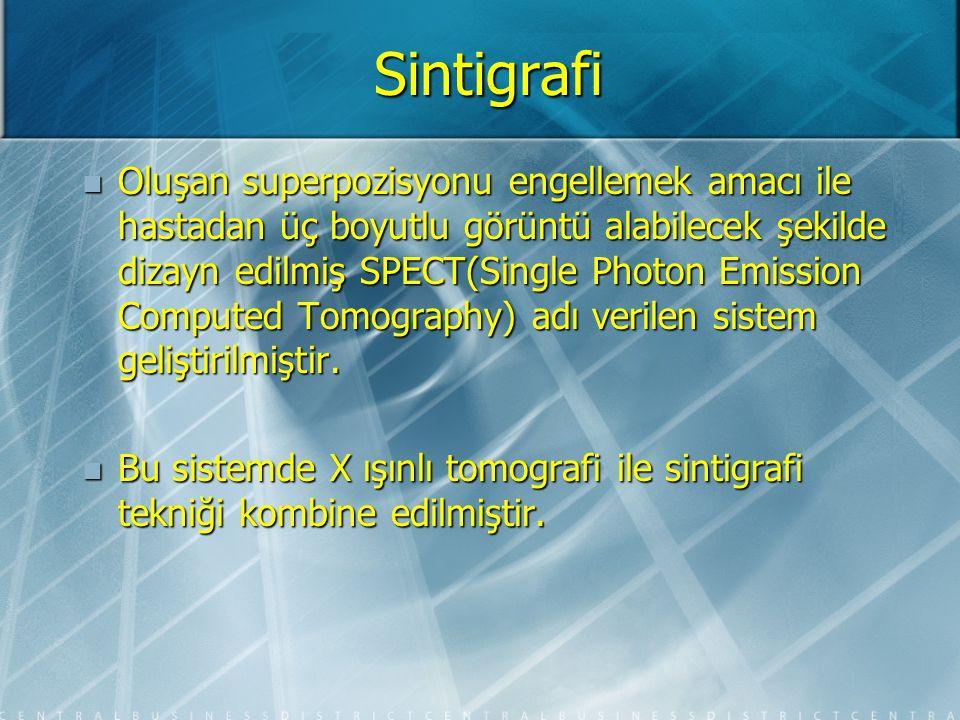 Sintigrafi Teknesyum 99m: Teknesyum 99m: Teknesyum 99m perteknetat Sjögren Sendromunun tanısında tükrük bezi tutulumunu göstermede kullanılabilir (düşük uptake,gecikmiş ekskresyon).