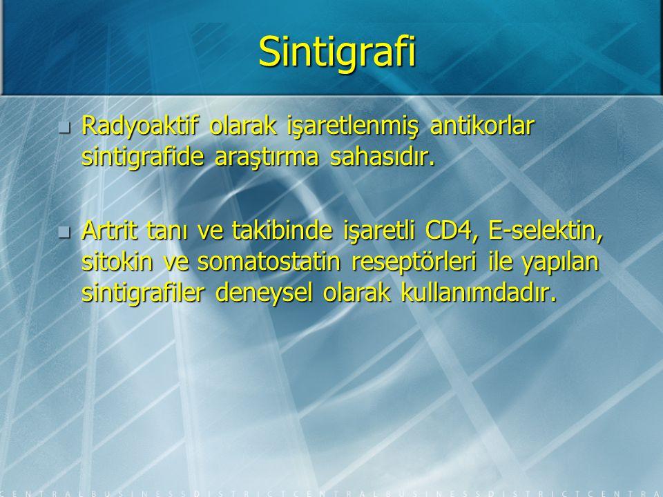 Sintigrafi Açıklanamayan bel ağrısı olan, malignite tanısı veya şüphesi bulunanlarda sintigrafi şarttır.