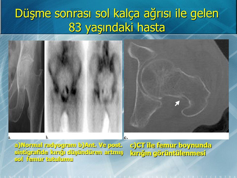 Sintigrafi Plantar fasiit (Sağ kalkaneal tüberküle yapışan plantar fasya yerinde artmış tutulum)