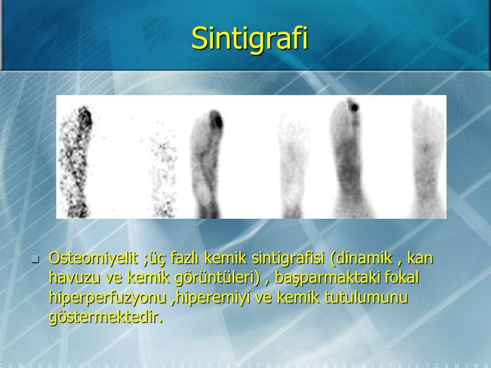 Sintigrafi Paget hastalığı (Artmış sağ prox. femur ve genişlemiş tibialardaki tutulum)