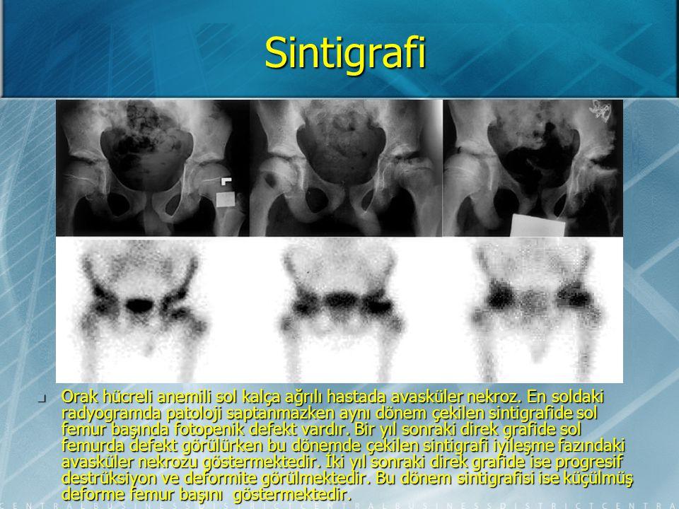 Sintigrafi Spontan osteonekroz.