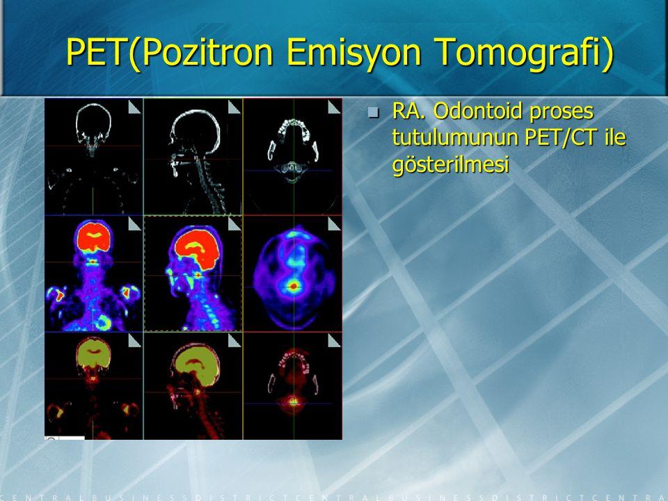 PET(Pozitron Emisyon Tomografi) SpA 'de entesitis,RA ile karşılaştırma A.Omuz B.Sternoklaviküler eklemler C.