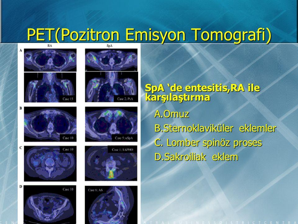 PET(Pozitron Emisyon Tomografi) E. Kalça eklemi F. Pubik simfisis G. İskiyal tuberkul