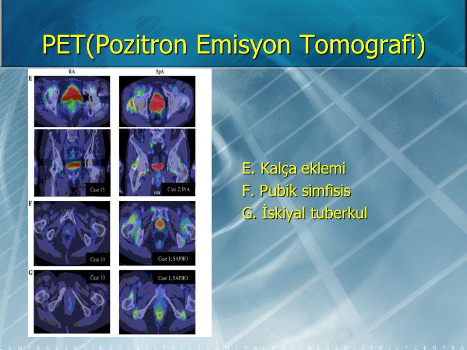 PET(Pozitron Emisyon Tomografi) Takayasu arteriti aktif olan hastanın normal MR görüntüsü,eş zamanlı çekilen PET ile aktif hastalığın gösterilmesi