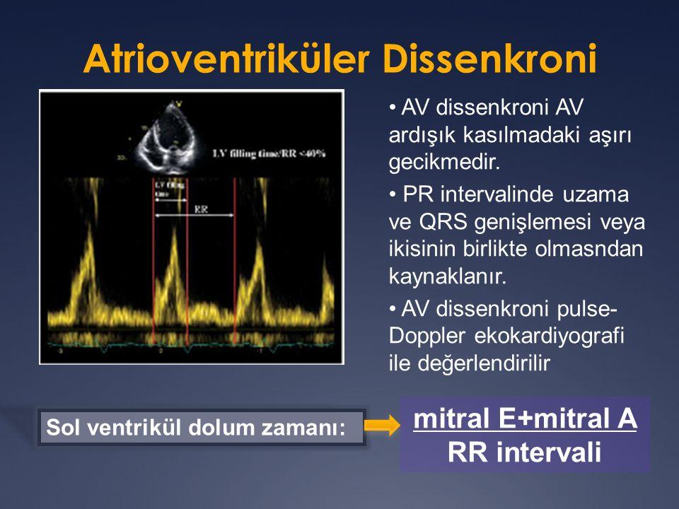 Sol ventrikül dolum zamanı: AV dissenkroni AV ardışık kasılmadaki aşırı gecikmedir.