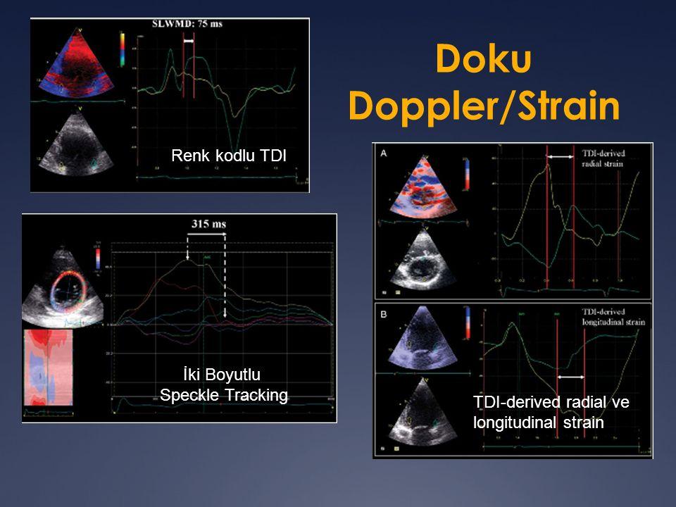 Doku Doppler/Strain Renk kodlu TDI TDI-derived radial ve longitudinal strain İki Boyutlu Speckle Tracking