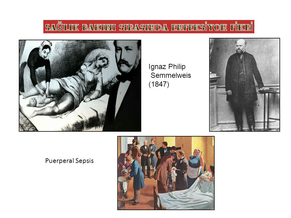 SAĞLIK BAKIMI SIRASINDA ENFEKSİYON FİKRİ Puerperal Sepsis Ignaz Philip Semmelweis (1847)