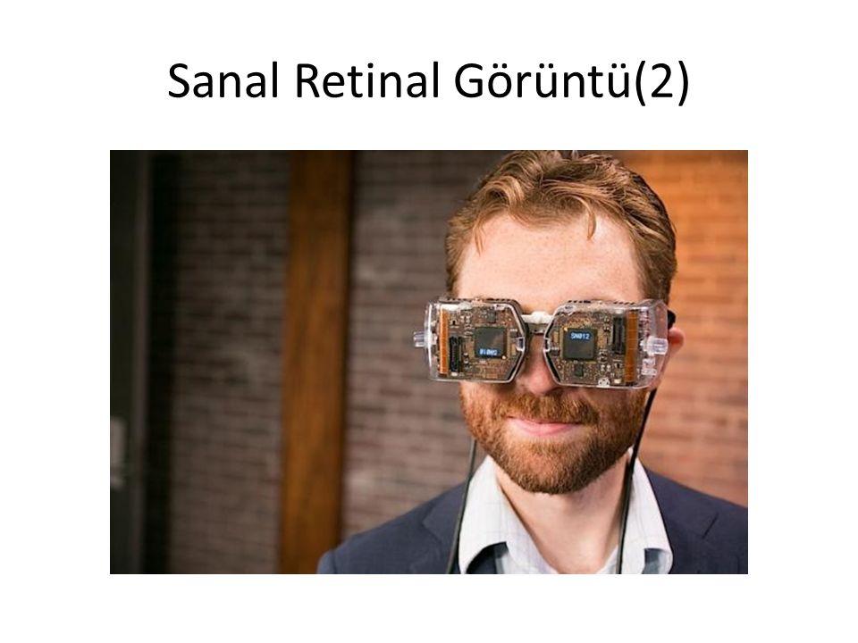 Sanal Retinal Görüntü(2)
