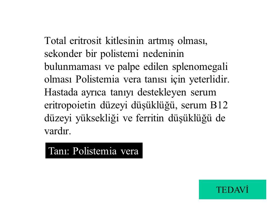 Total eritrosit kitlesinin artmış olması, sekonder bir polistemi nedeninin bulunmaması ve palpe edilen splenomegali olması Polistemia vera tanısı için