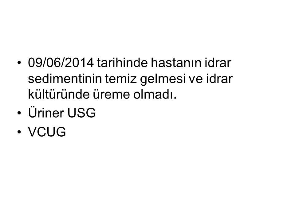 09/06/2014 tarihinde hastanın idrar sedimentinin temiz gelmesi ve idrar kültüründe üreme olmadı. Üriner USG VCUG