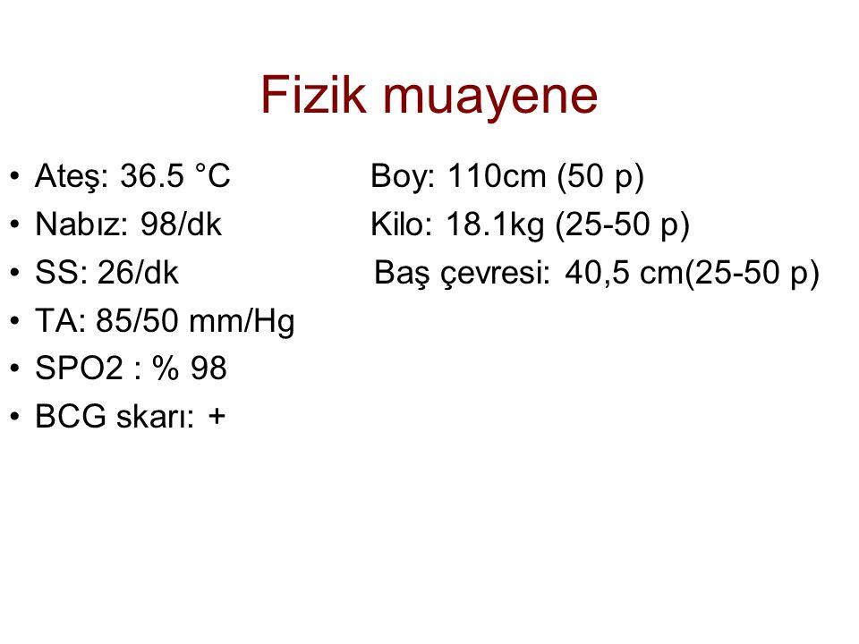 Fizik muayene Ateş: 36.5 °C Boy: 110cm (50 p) Nabız: 98/dk Kilo: 18.1kg (25-50 p) SS: 26/dk Baş çevresi: 40,5 cm(25-50 p) TA: 85/50 mm/Hg SPO2 : % 98
