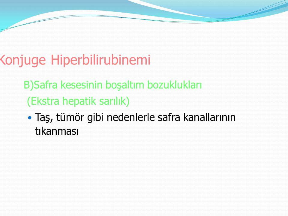 Konjuge Hiperbilirubinemi B)Safra kesesinin boşaltım bozuklukları (Ekstra hepatik sarılık) Taş, tümör gibi nedenlerle safra kanallarının tıkanması