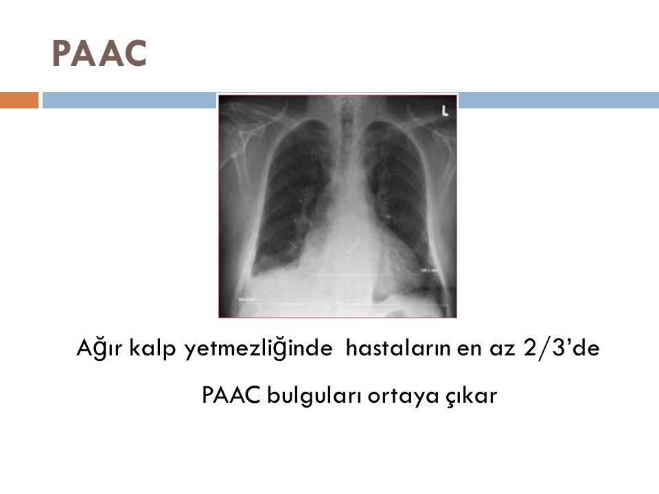 PAAC A ğ ır kalp yetmezli ğ inde hastaların en az 2/3'de PAAC bulguları ortaya çıkar