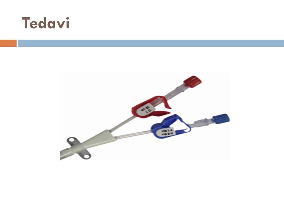 Tedavi Anürik hastalarda hemodializ alternatif seçenektir