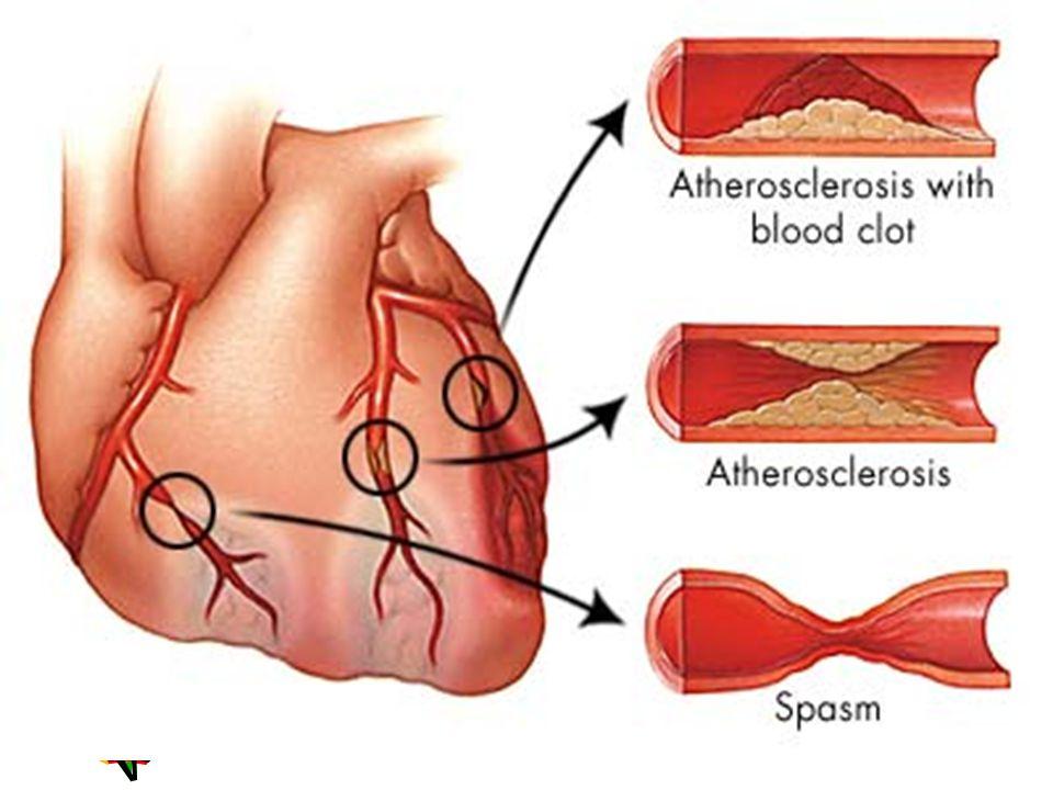 Fazla kilo Kandaki kolesterol ve trigliserid düzeyini arttırır, HDL-kolesterol düzeyini düşürür, Kan basıncını yükseltir, Diyabeti başlatabilir, Tüm bunlar olmadığı takdirde bile tek başına bir risktir.