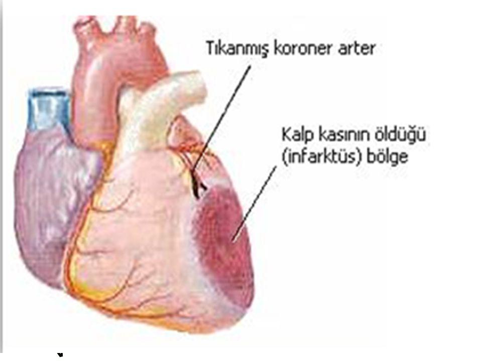 Diabetes mellitus, Yüksek kolesterol, Hipertansiyon, Sigara, Fazla kilo, Hareketsiz yaşam tarzı.