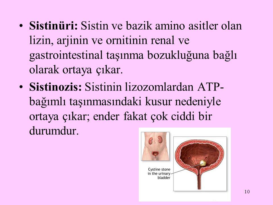 10 Sistinüri: Sistin ve bazik amino asitler olan lizin, arjinin ve ornitinin renal ve gastrointestinal taşınma bozukluğuna bağlı olarak ortaya çıkar.