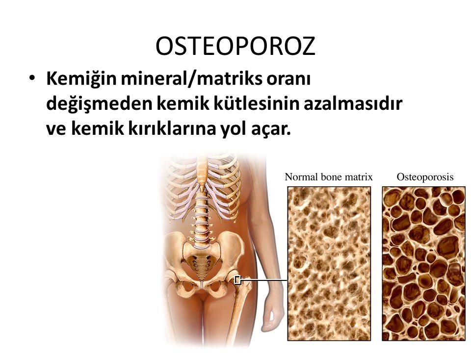 OSTEOPOROZ Kemiğin mineral/matriks oranı değişmeden kemik kütlesinin azalmasıdır ve kemik kırıklarına yol açar.