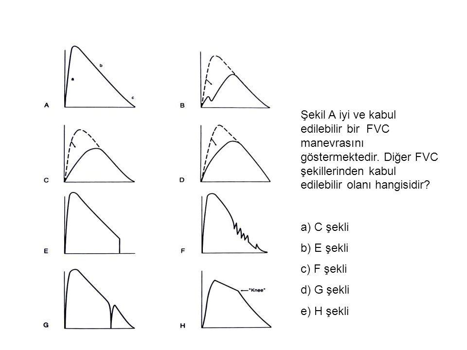 Şekil A iyi ve kabul edilebilir bir FVC manevrasını göstermektedir. Diğer FVC şekillerinden kabul edilebilir olanı hangisidir? a) C şekli b) E şekli c