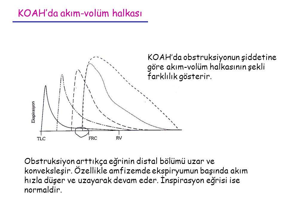 KOAH'da obstruksiyonun şiddetine göre akım-volüm halkasının şekli farklılık gösterir. Obstruksiyon arttıkça eğrinin distal bölümü uzar ve konveksleşir