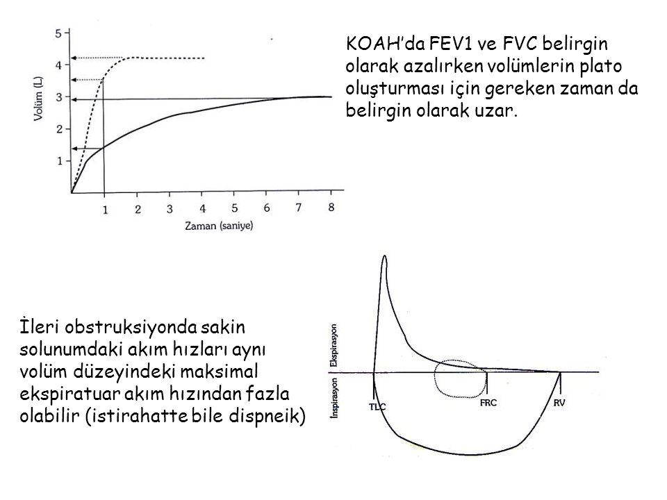 KOAH'da FEV1 ve FVC belirgin olarak azalırken volümlerin plato oluşturması için gereken zaman da belirgin olarak uzar. İleri obstruksiyonda sakin solu