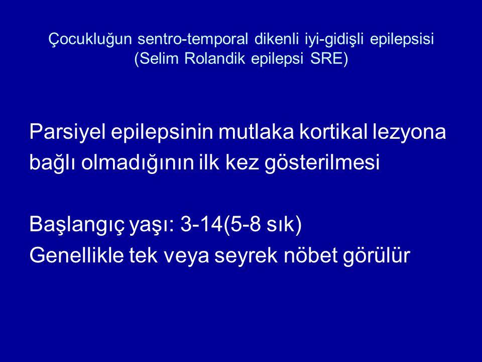 Çocukluğun sentro-temporal dikenli iyi-gidişli epilepsisi (Selim Rolandik epilepsi SRE) Parsiyel epilepsinin mutlaka kortikal lezyona bağlı olmadığını